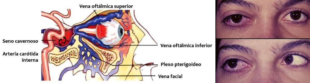 Peoría paradójica en fístulas carótido-cavernosas durales ¨Cuando el ...