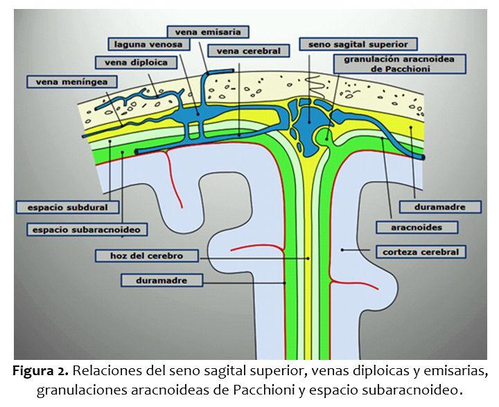 Invasión tumoral del seno sagital e hipertensión intracraneal. A ...