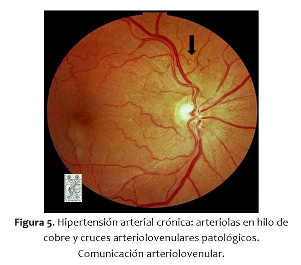 Retinopatía hipertensiva; aprendiendo a reconocerla: Una mirada en ...